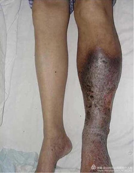 初期 血栓 症状 症